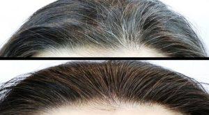 القضاء على الشعر الابيض
