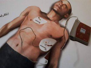 جهاز صدمات القلب الالي